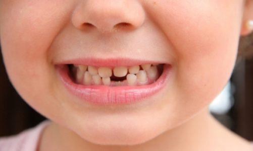 Pénzkereseti lehetőség 8 éves kor alatt – avagy kilenc fogtündér hagyomány a nagyvilágból